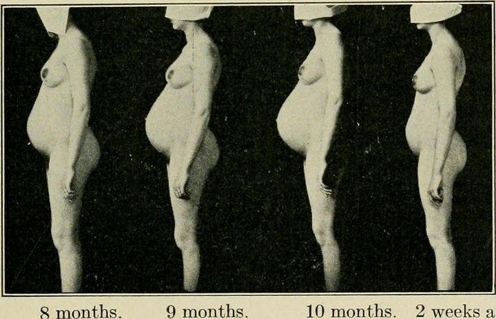 Определение срока беременности. Что может быть проще?